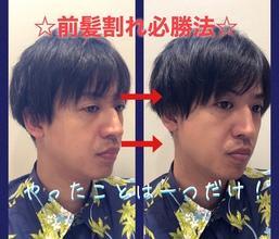 【M字 前髪】前髪M字割れ必勝法!M字割れはサイドの毛に頑張ってもらおう!