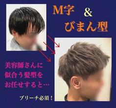 【薄毛 解消法】M字や地肌がみえるお悩みをWカラーで解消する!