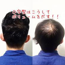 【O字型 パーマ】薄毛の頭頂部をカバーする方法!