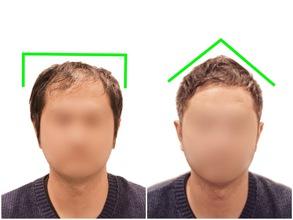 【薄毛 髪型】AGAを強調させる髪型と改善のポイント!