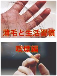 【薄毛 生活習慣】気になる薄毛と生活習慣の関連性について~喫煙編~