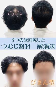 【薄毛 つむじ】2つのつむじによる薄毛をなくす方法
