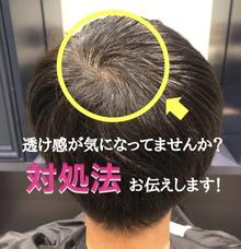 【頭頂部 薄毛】短くするのに抵抗がある方。まずはここから☆