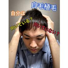 【植毛 薄毛】自毛植毛の向き不向き