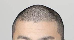 【頭皮 カバー】美容師目線、ヘアタトゥーについて