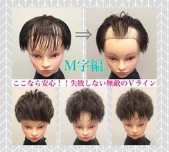 【薄毛 M字】Vラインを活かせば髪型のバリエーションが広がる!