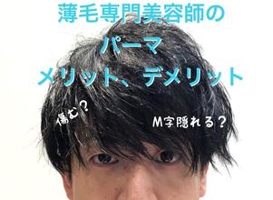 【M字 パーマ】薄毛美容師ならではのパーマのメリット、デメリット