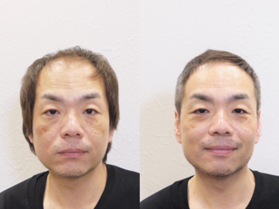 中 年 男性 髪型