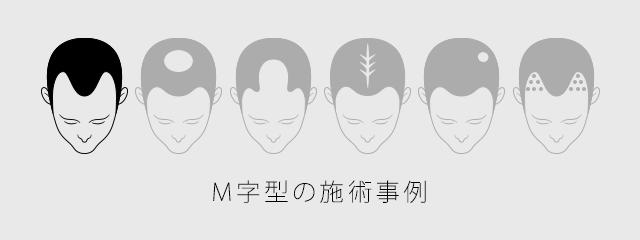 M字型の施術事例