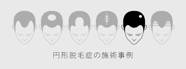 円形脱毛症の施術事例