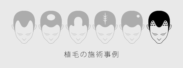 植毛の施術事例